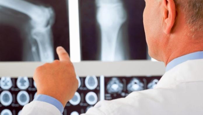Protesi ortopediche, nel 2020 in rallentamento per il Covid